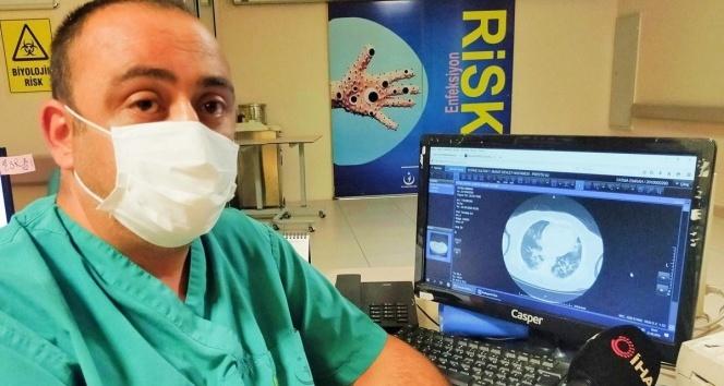 Koronavirüse yakalanan hastaların ciğerlerindeki dehşet veren görüntü